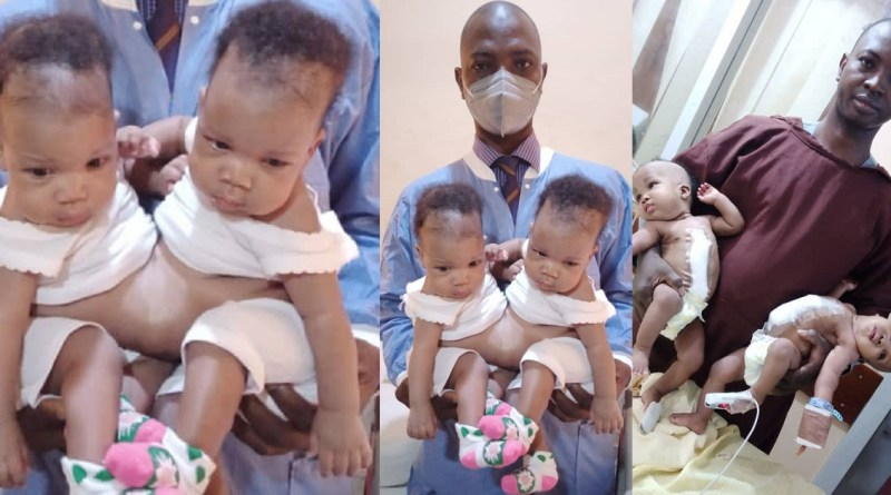 Conjoined Twins Separated At University Of Ilorin Teaching Hospital(Photos)